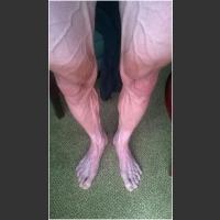 Nogi kolarza po 18 etapie